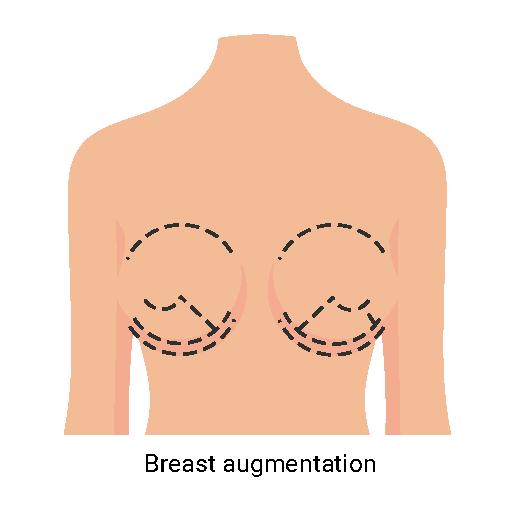 Breast augmentation-01