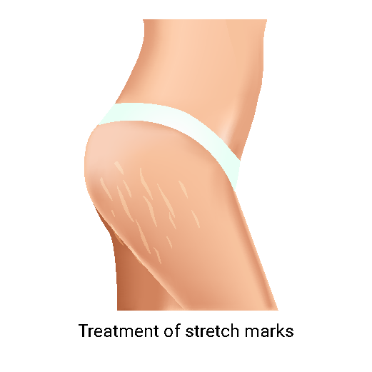 Treatment of stretch marks-01-01