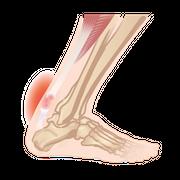 https://www.tricellbio.com/wp-content/uploads/2020/08/Achilles-tendinitis-01.png