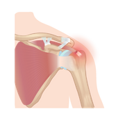 https://www.tricellbio.com/wp-content/uploads/2020/08/Rotator-Cuff-Injury-01.png